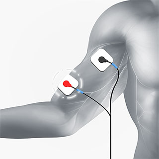 upper arm electrode placement