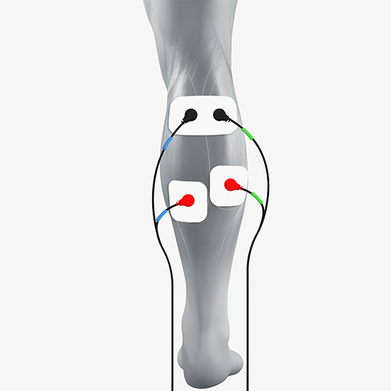 calf  electrode placement