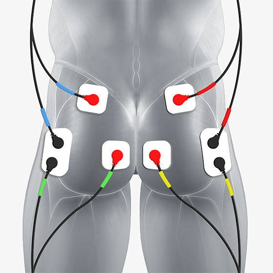 glute electrode placement