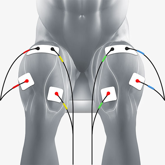 quad electrode placement