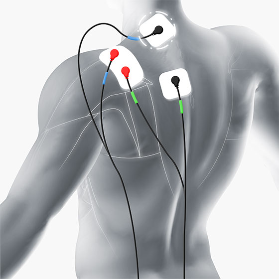 shoulder electrode placement